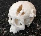Opening Skull